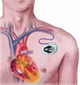 хочу кардіостимулятор!