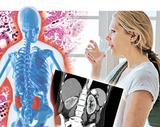 пієлонефрит: винна інфекція