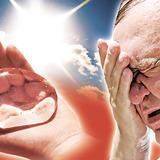 гіпергідроз – літнє загострення