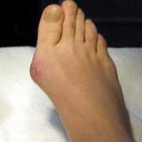 «кісточки» на ногах