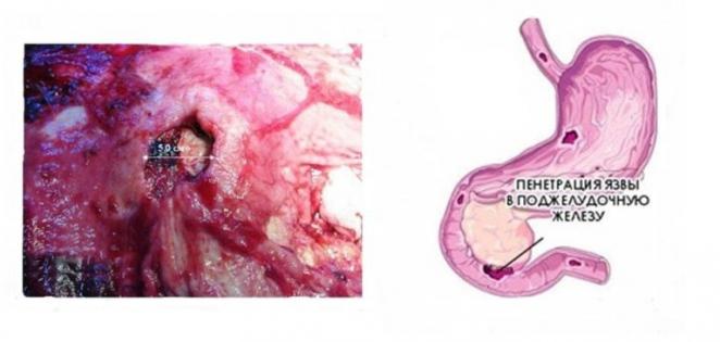пенетрація виразки шлунка