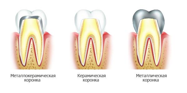 Стоматологическая студия Ольги Богданцевой - лучшее место для установки зубных коронок