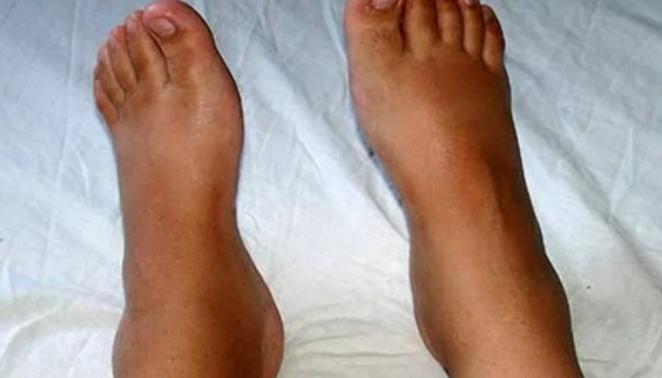 Почему сильно отекают ноги в жару и как этого избежать