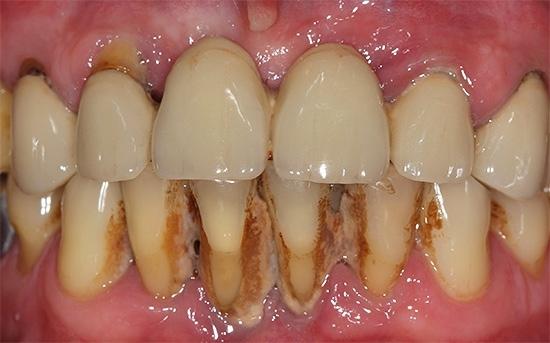 Як відбілити зуби?